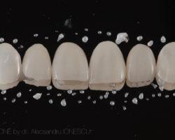 estica-dentara-bucuresti-04