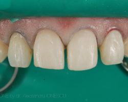 estica-dentara-bucuresti-05