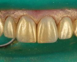 estica-dentara-bucuresti-07