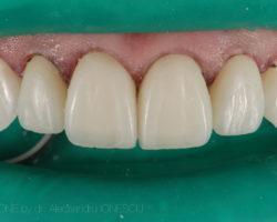 estica-dentara-bucuresti-08