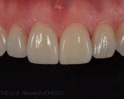 estica-dentara-bucuresti-09