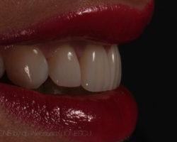 estica-dentara-bucuresti-11-2