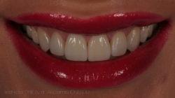 estica-dentara-bucuresti-10-2
