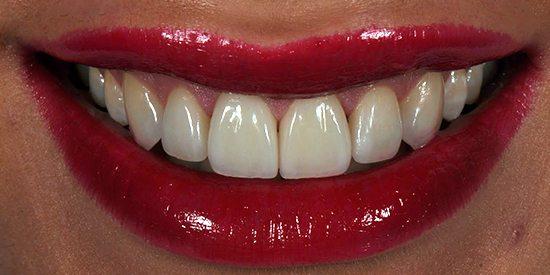 After-Estetica dentara