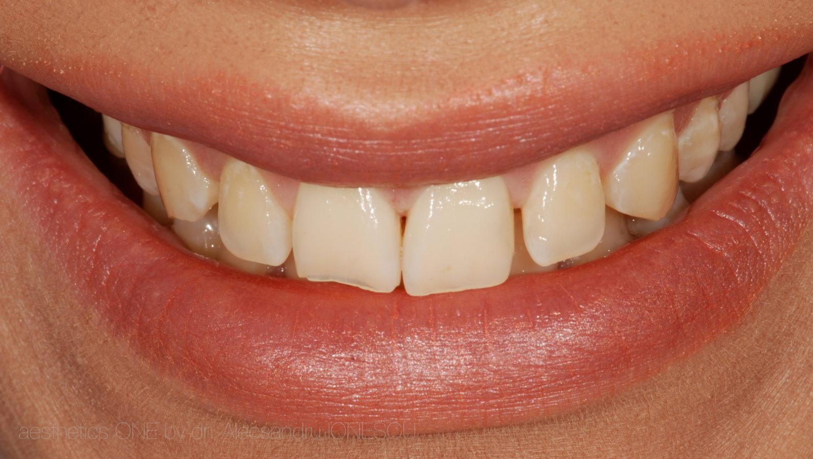 Estica dentara Bucuresti
