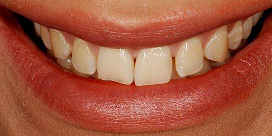 Before-Estetica dentara