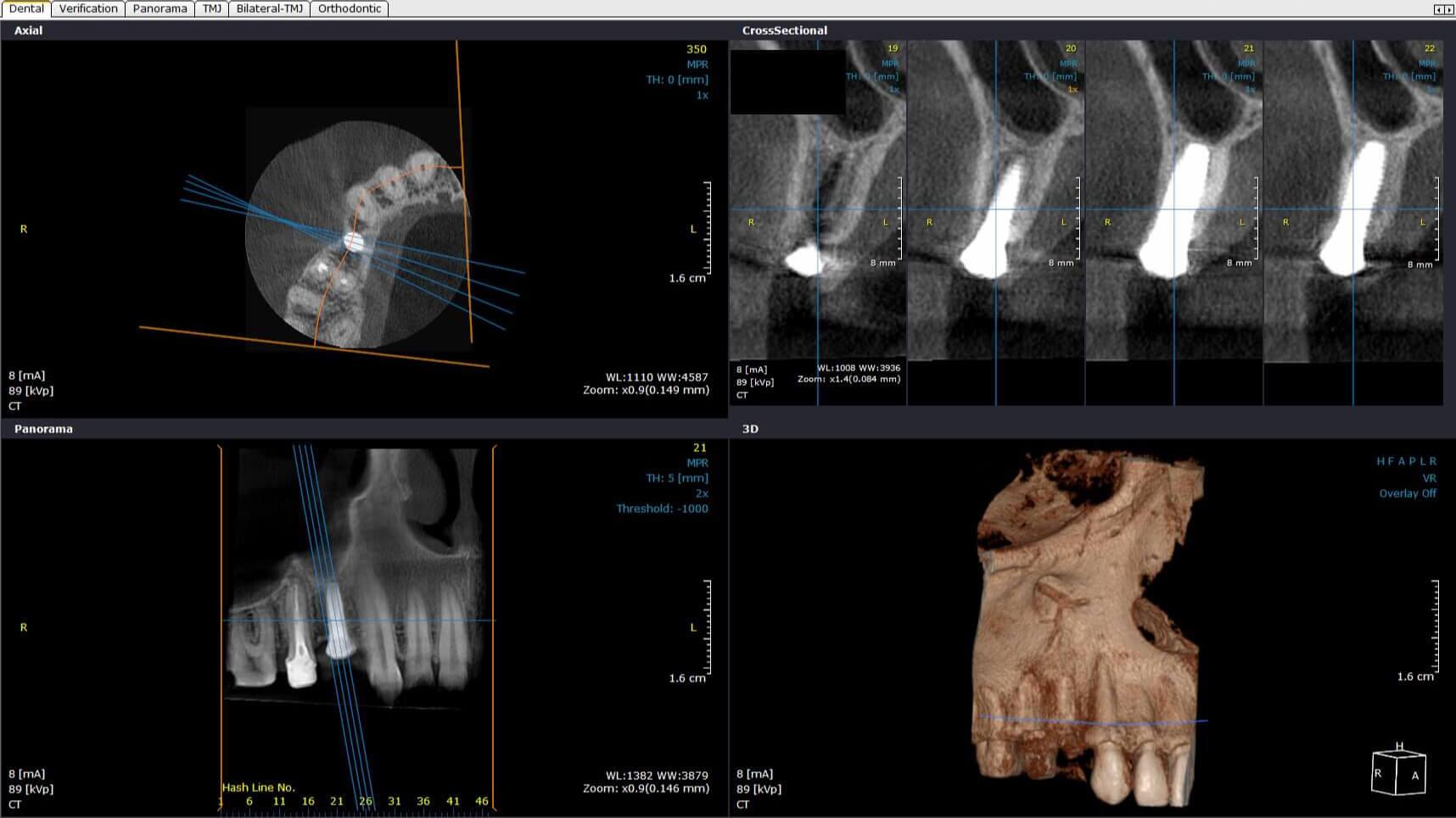 Investigatii imagistice 3D: CBCT – tomografie computerizata cu fascicul conic